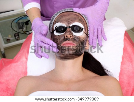 Procedure carbon peeling. Laser rejuvenation and skin lightening, treatment of problematic skin. - stock photo