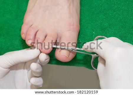 quá trình chân tại thẩm mỹ viện