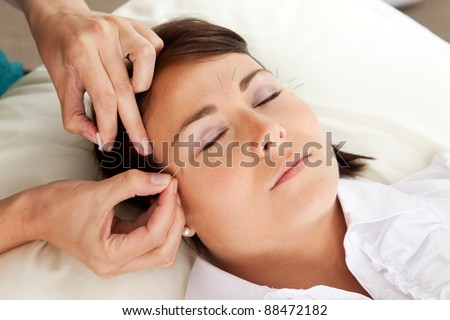 Professional acupuncturist placing a needle near the eye of a patient - stock photo