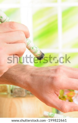 Professional moxa stick in hands of practitioner over patient body - stock photo