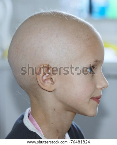 profile of a caucasian child showing hair loss due to chemotherapy treatment for cancer - stock photo