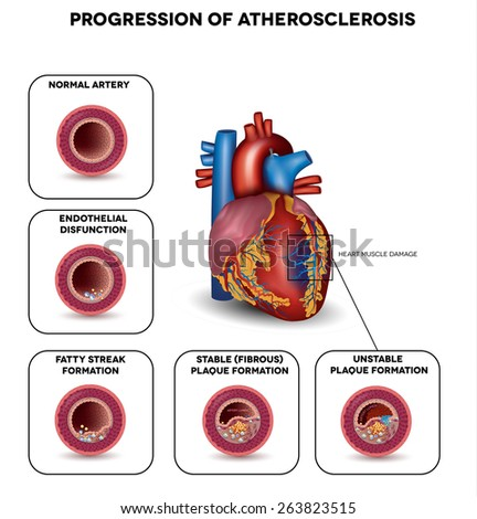 Progression of Atherosclerosis till heart attack. Heart muscle damage due to blood clot. Very detailed illustration of fatty streak formation, white blood cells infiltration, blood clot formation etc. - stock photo