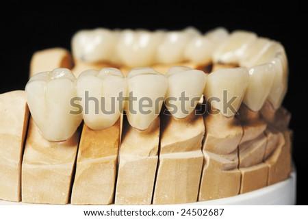 prosthesis - stock photo