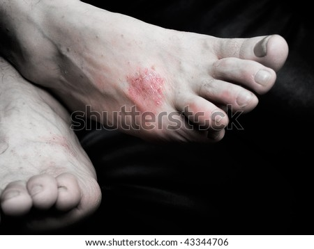 Psoriasis  is a chronic, non-contagious disease that affects mainly the skin. - stock photo