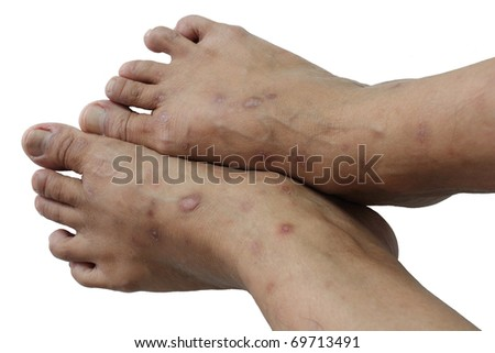 Psoriasis is a chronic non-contagious disease that affects mainly the skin - stock photo