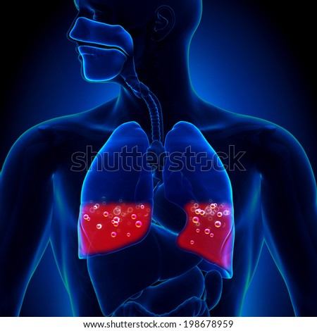 Pulmonary Edema - Blood in Lungs - stock photo