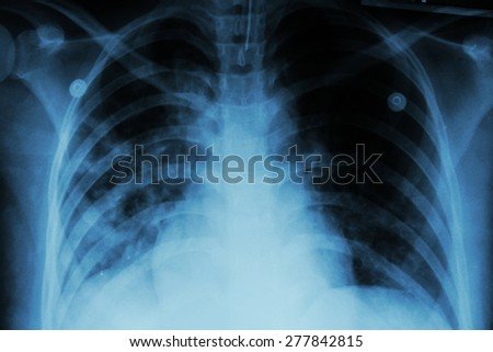 Pulmonary Tuberculosis ( TB )  :  Chest x-ray show alveolar infiltration at both lung due to mycobacterium tuberculosis infection - stock photo