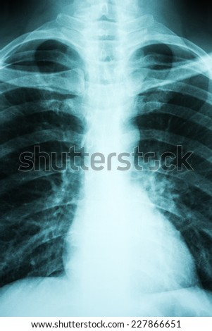 Pulmonary X-Ray Of Patient Lungs - stock photo