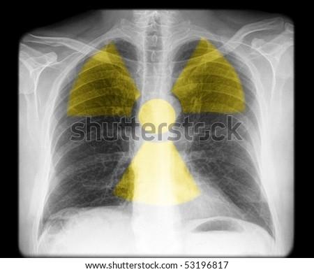 radioactive chest - stock photo