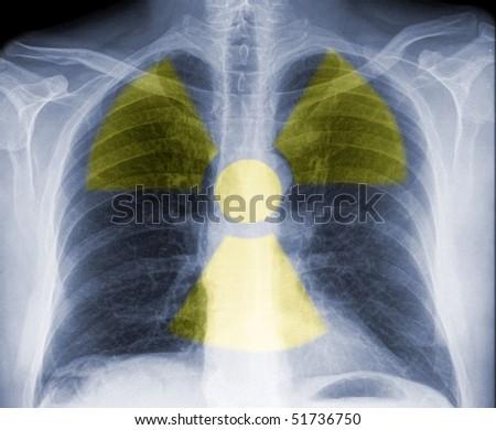 radioactive chest, dangerous radiation - stock photo