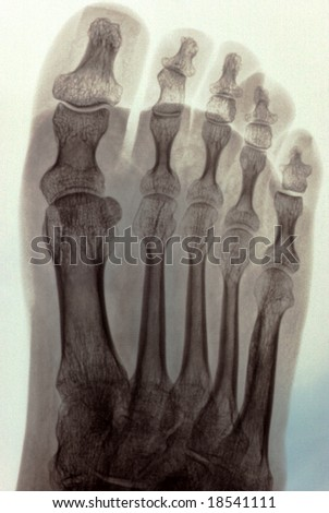 radiography of a foot