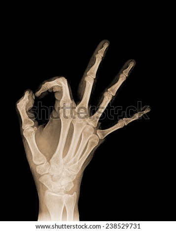 Radiography of the right hand making a gesture - stock photo