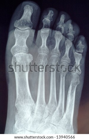 radiography of toe