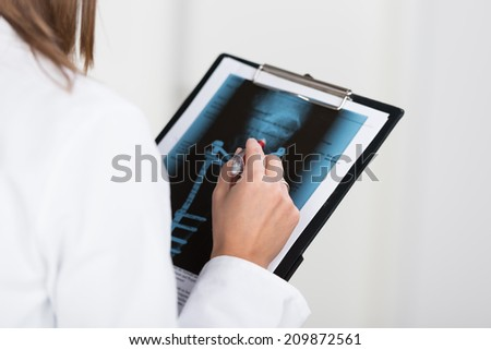 Radiologist or doctor looking at an x-ray attached to a clipboard as she makes notes, closeup of her hands - stock photo