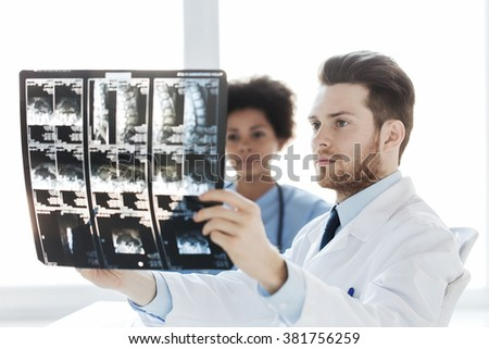 radiology, surgery, health care, people and medicine concept - doctor and nurse looking at x-ray image of spine at hospital - stock photo