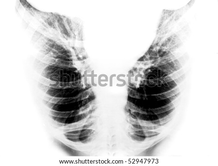 Radiology, x-ray picture of lungs of the man - stock photo
