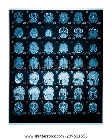 Real brain MRI slide of a young woman. Patient's and clinics names cloned out