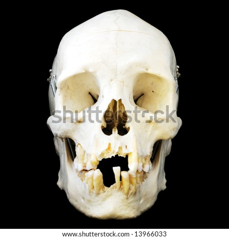Real human skull with hinged jaw and some missing teeth.  Front view.