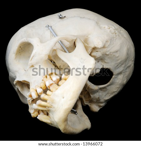 Real human skull with hinged jaw and some missing teeth.  View of underside, with skullcap removed.