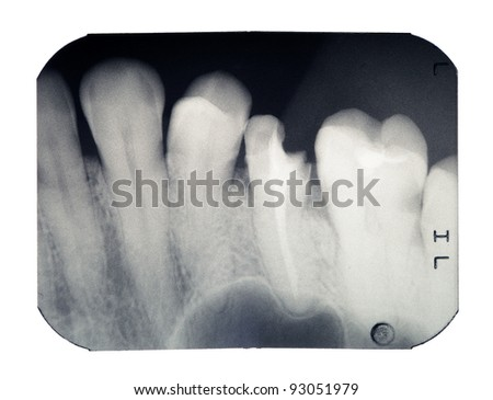 Real x-ray picture of the broken tooth, isolated on a white background - stock photo
