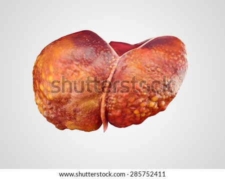 Realistic illustration of cirrhosis of human liver isolated on white - stock photo