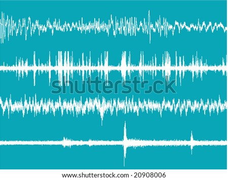 Realistic illustration of the brain waves activity. - stock photo