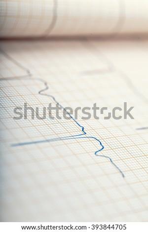 Recording of cardiac activity on ECG - stock photo