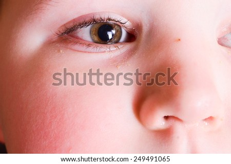 red eyes of a child. Boy with conjunctivitis. Little boy with having spring allergy - stock photo
