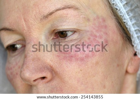 Red papules on the face of an elderly woman on the next day after biorevitalisation hyaluronic acid