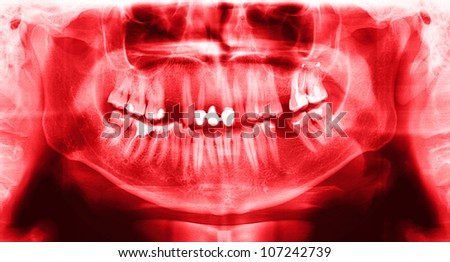 Red x-ray teeth scan mandible. Panoramic negative image facial of young adult male. Photo was taken on digital system equipment for dental diagnostic examination upon clinical checkup. - stock photo