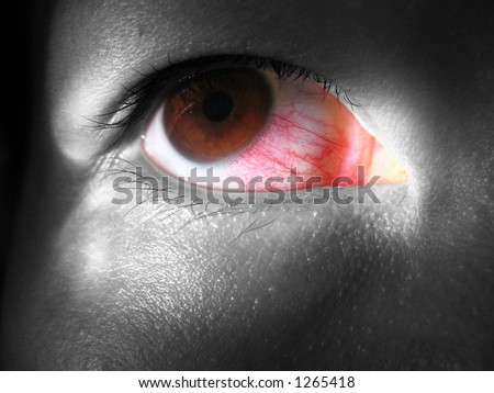 Redeye - stock photo