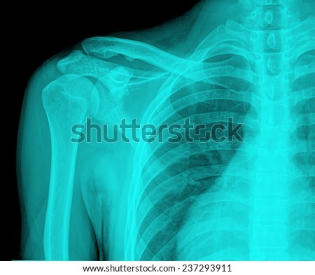 regular shoulder on x-ray - stock photo