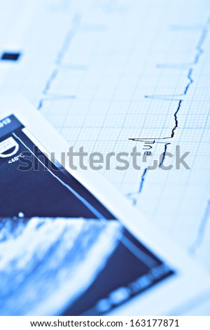 research in cardiology - stock photo