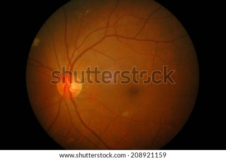 Retinal image of left eye in a 60 years old man with diabetes mellitus and hypertension : copper wiring eye - yogabreezes.com