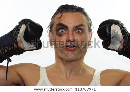 retro boxer man with black eye on white background - stock photo