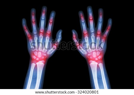Rheumatoid arthritis , Gout arthritis  ( Film x-ray both hands of child with multiple joint arthritis ) ( Medical , Science and Health care concept )