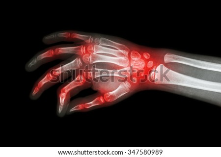 Rheumatoid arthritis , Gouty arthritis ( Film x-ray hand of child with arthritis at multiple joint ) - stock photo