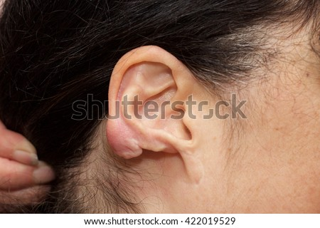 Right Earlobe Resection in a woman who developed a keloid after an ear piercing. - stock photo