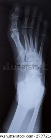 Right foot ankle Xray, top view