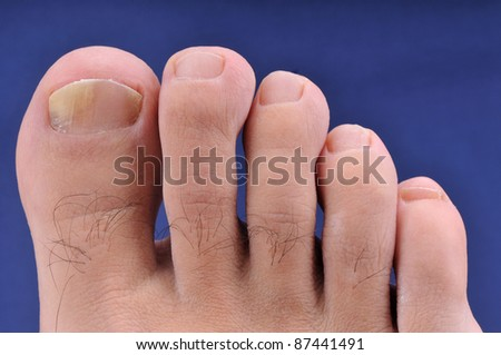 Right foot toe nail suffering from fungus infection - stock photo