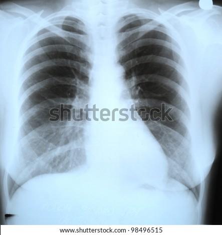 Roentgen shot of lungs - stock photo