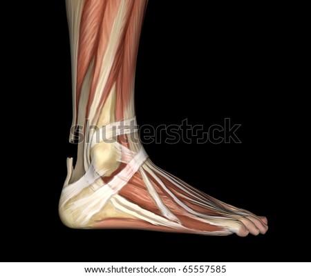 Ruptured Achilles Tendon - stock photo