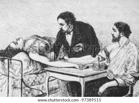 RUSSIA - CIRCA 2009: Illustration from the textbook Biology, published in the Russia shows attempt a blood transfusion from one person to another in the 19th Century, circa 2009 - stock photo