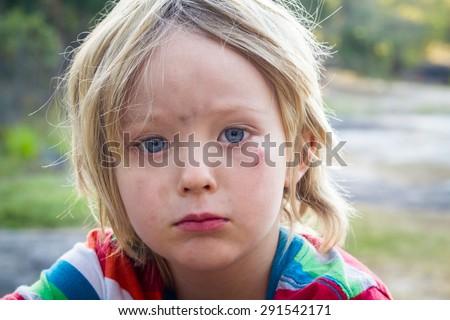Sad, injured young child looking at camera - stock photo