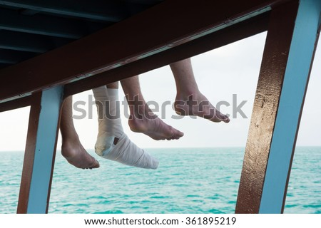 SAFETY TRIP IN YOUR HOLIDAY !! : TOURIST 'S INJURY LEG ,SITTING AT THE SIDE OF BOAT-SUNDECK DURING TRAVELING IN THE SEA  - stock photo
