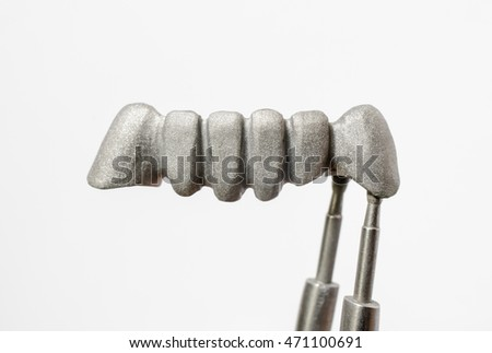 sandblasted bridge, dental alloy (base metal)