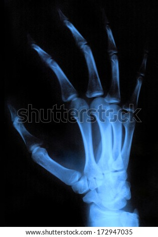Scan of human hand xray image medical background - stock photo