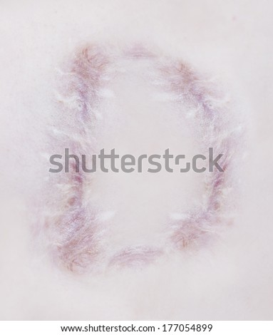 Scar letter D on human skin - stock photo