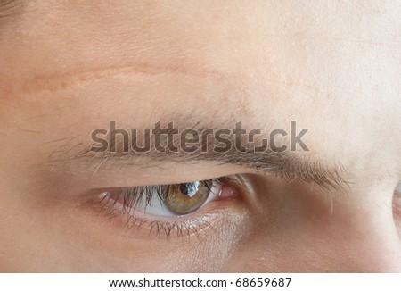scar on forehead - stock photo