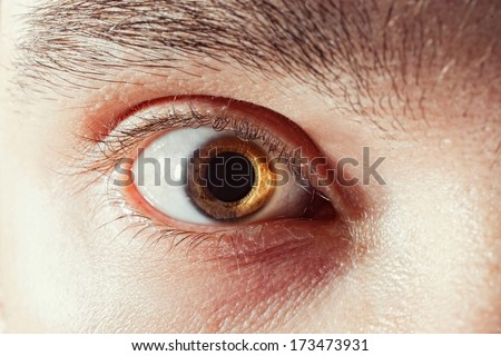 scared male eye with mydriatic pupil macro - stock photo
